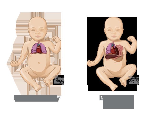 Congenital Diaphragmatic Hernia (CDH): About, Diagnosis & Treatment