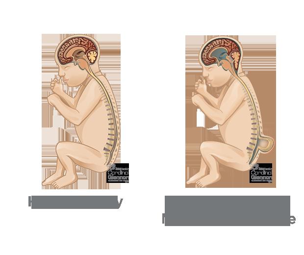 Myelomeningocele (Spina Bifida) | SSM Health