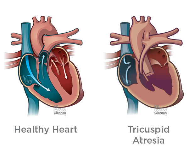 Hypoplastic Right Heart Syndrome Hrhs Diagnosis