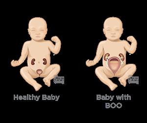 Advanced Fetal Procedures | SSM Health